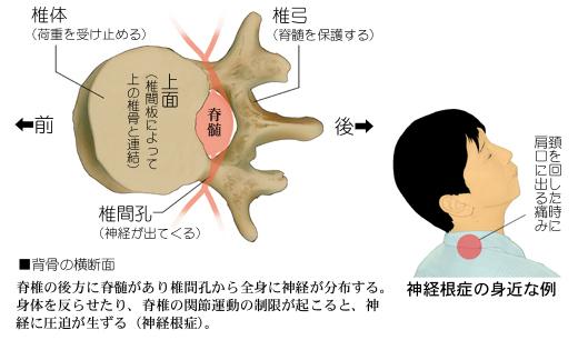 背骨の関節と脊髄、神経根症の関係