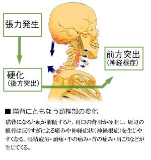 猫背と頚椎部の関節異常
