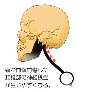 stage04の姿勢と頚部の後彎