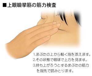 上眼瞼挙筋の筋力検査