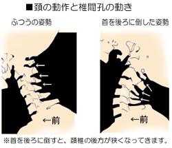 頚の動作と神経圧迫の関係