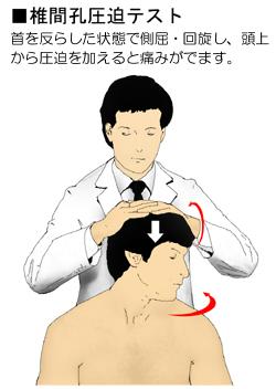 椎間孔圧迫テスト