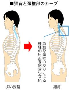 猫背と頚椎のカーブの関係