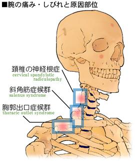 腕の痛みの発生部位と分類、胸郭出口症候群、斜角筋症候群、頚椎の神経根症