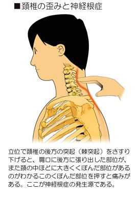 頚椎の前彎と神経根症