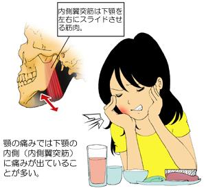 顎の痛みと内側翼突筋