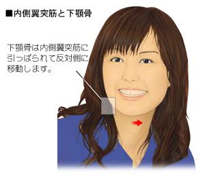 顎のゆがみと内側翼突筋の関係
