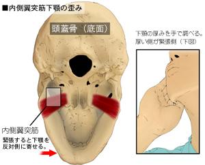 内側翼突筋の付着部位と手によるコンタクト