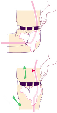 腸腰筋短縮の検査法