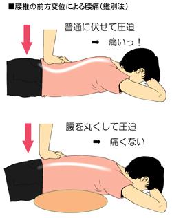 腰椎のすべりによる腰痛の鑑別法