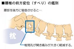 腰椎のすべりの解除法