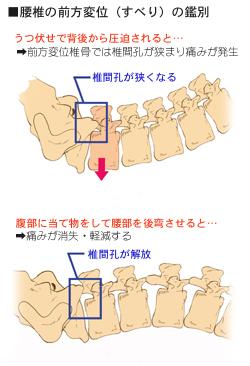 腰椎のすべりの鑑別法の考え方