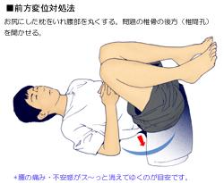 腰椎のすべりの対処法