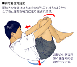 腰椎のすべりによる腰痛の対処法01