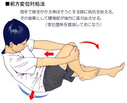 腰椎のすべりによる腰痛の対処法02