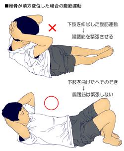 腰椎のすべり症と腹筋運動