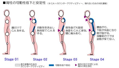 背骨の可動性低下による姿勢の類型
