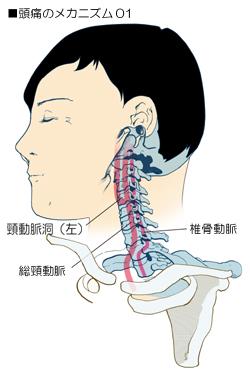 頭痛に関係する頚部の血管の走行
