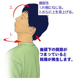 上部頚椎の神経根症の検査法