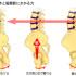 腸腰筋膜症候群による腰痛について