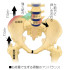 急性の腰痛について
